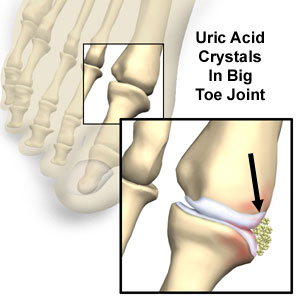 uric acid gout dyn, uric acid, what is uric acid